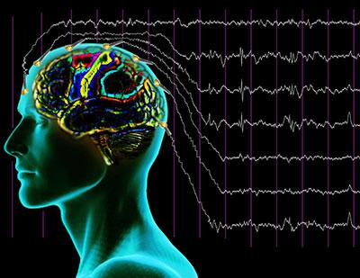 EEG11.jpg
